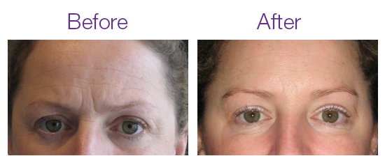 Before and after anti wrinkle treatment