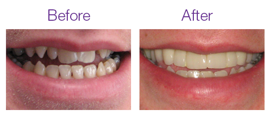 Images of Smile Design Before and After