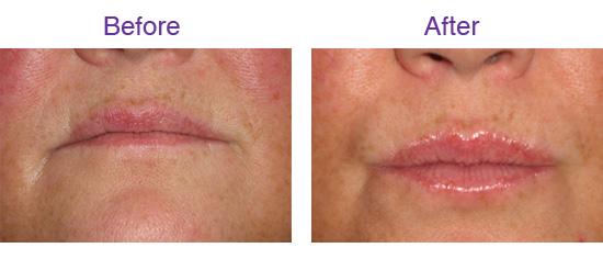 Smile Studio Penarth Cosmetic Dentistry