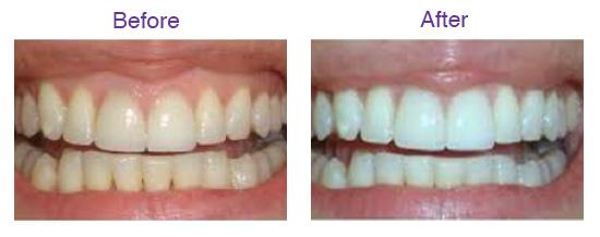 Teeth Whitening Cardiff Smile Studio Penarth